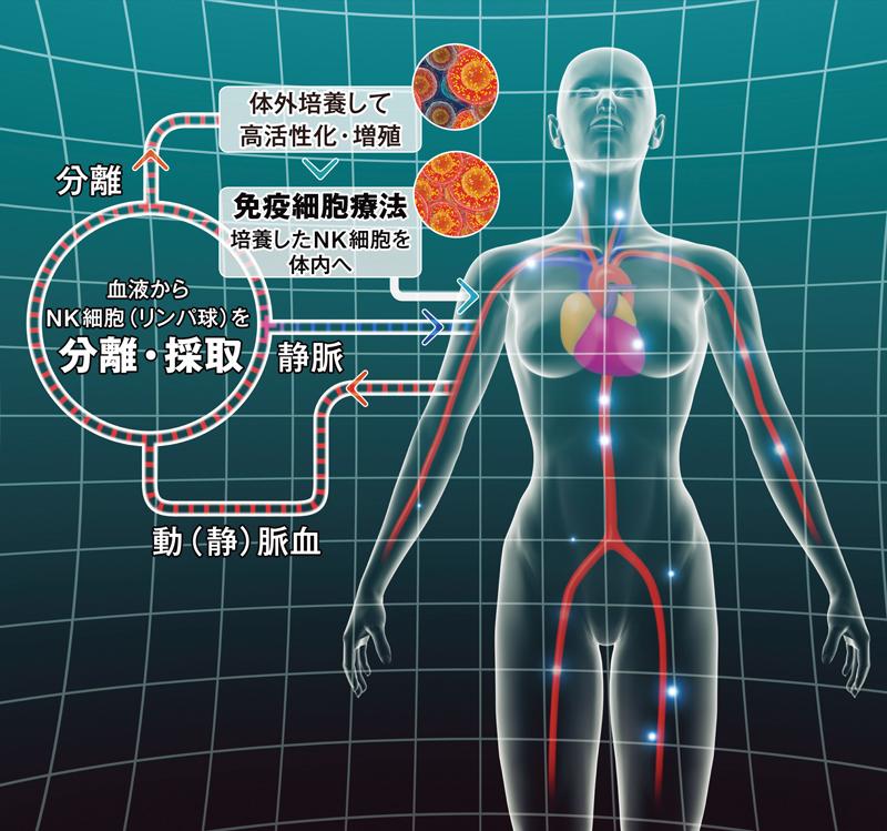 ATLに対するANK免疫細胞療法の論文が海外誌に掲載される