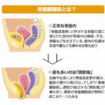 【泌尿器科にみる】ニーズに応える医療